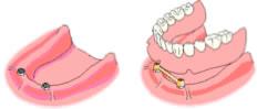 recuperar todos los dientes con implantes