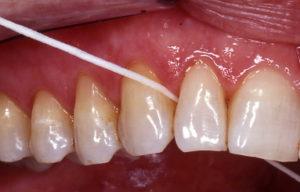 Higiene dental con hilo de seda