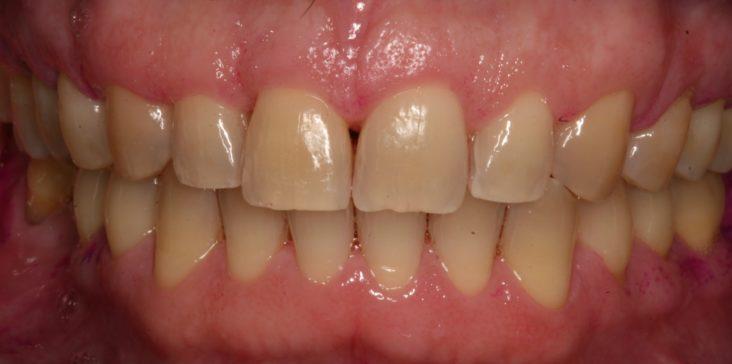Encías sanas en dientes con menos soporte