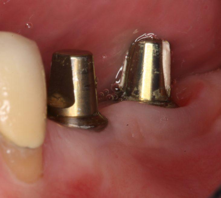 Implantes dentales sanos